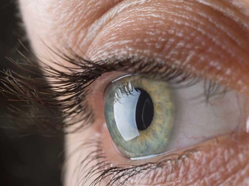 Start up napoletana per le malattie oculari